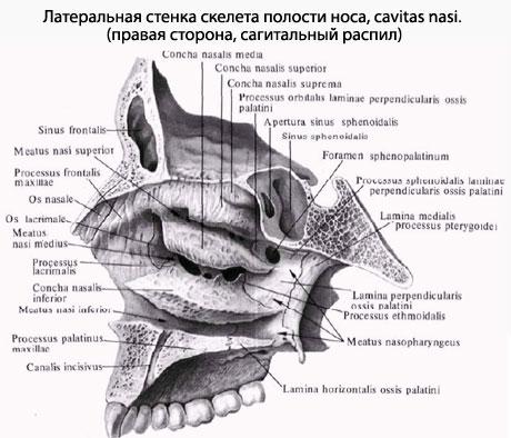 костной перегородки носа,