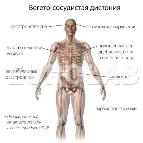 Лечение вегето-сосудистой дистонии - Медицинский портал EUROLAB