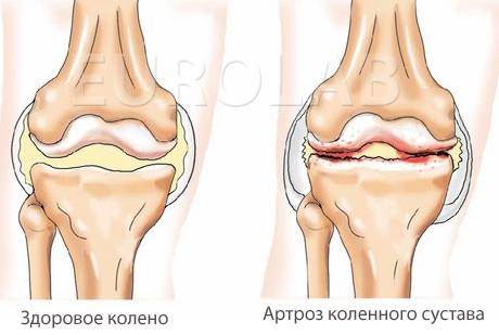 Артроз коленного сустава при беременности анатомия локтевого сустава сумки объемные картинки