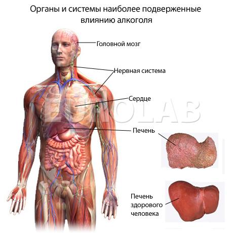 плазмаферез при повышенном холестерине
