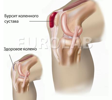 Как лечить бурсит коленного