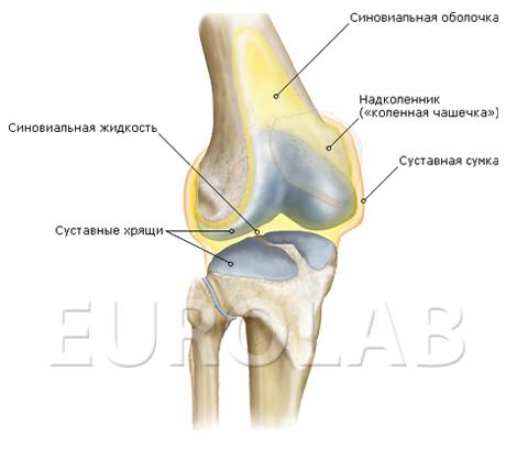 Хондроматоз коленного сустава лечение