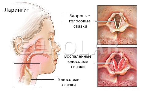Ларингит у беременных