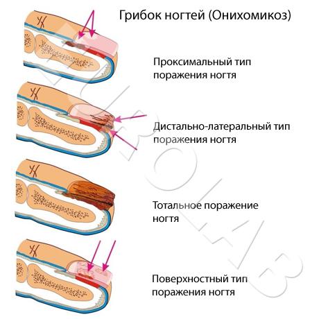 Схема лечения ирунином грибка ногтя
