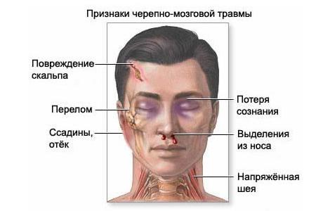 Рак черепно мозговой кости
