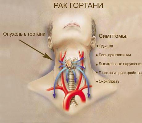 неприятный запах изо рта врач