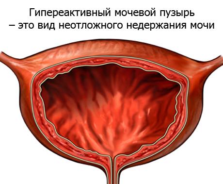 гиперактивный пузырь