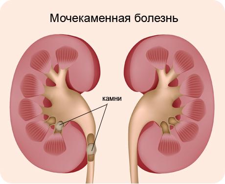Мочекаменная болезнь (МКБ) у детей