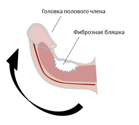 Как лечит воспаления суставов ног