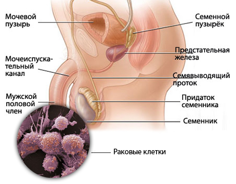 болезни полового члена. фото