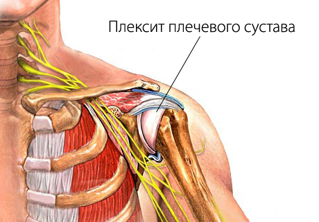 Плексит плечевого сустава - симптомы болезни, профилактика и ...