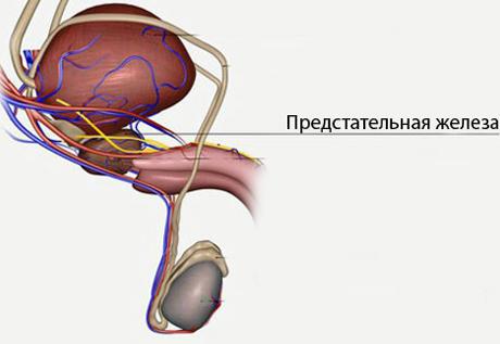 Дисплазия предстательной железы 1 ст Смешанный рост