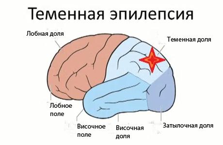 теменная эпилепсия у детей
