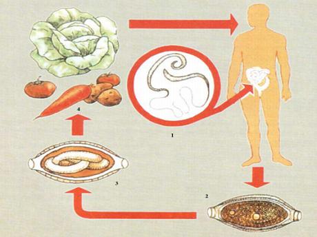 Трихоцефалез у детей
