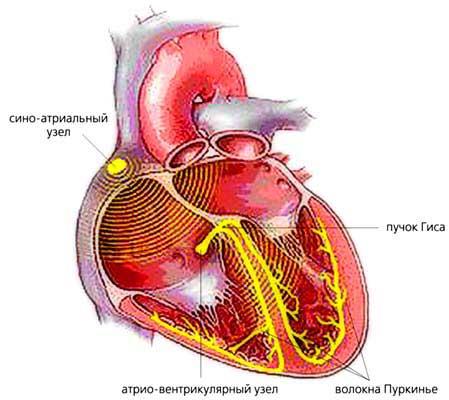 Блокады сердца у детей