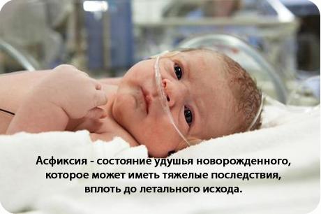 Асфиксия новорожденных - симптомы болезни, профилактика и лечение
