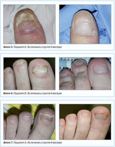 Лечение грибка ногтей ног борной кислотой