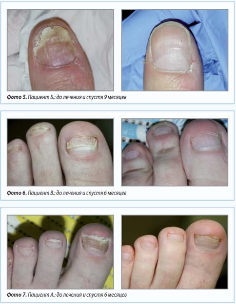Грибок дерматофит как лечить