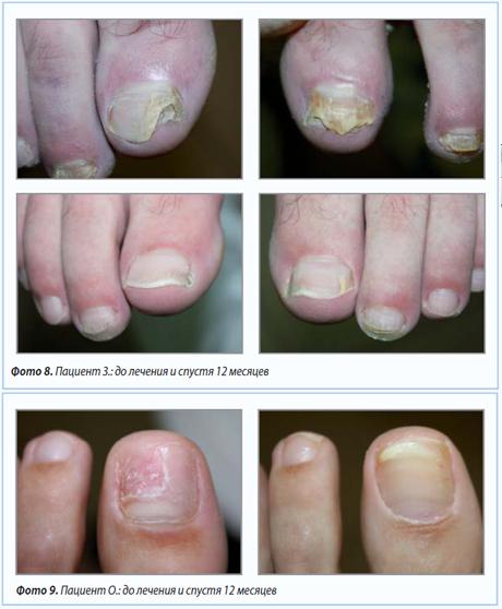 Лечение грибка на ногте чайным грибом