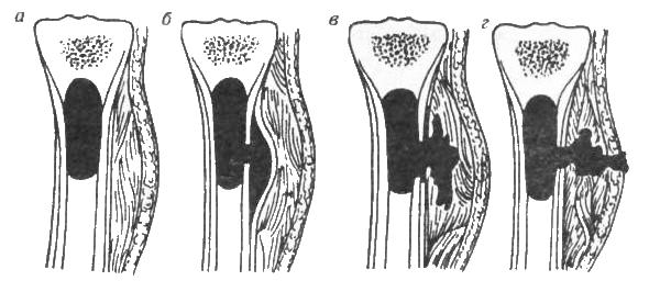 Гематогенный остеомиелит: этапы