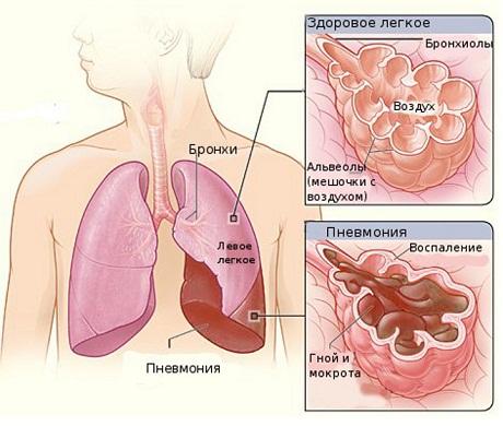 Очаговая пневмония у детей