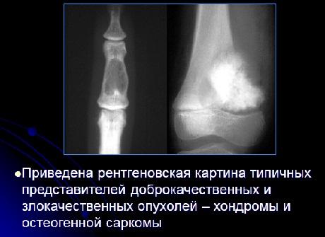 Реферат по травматологии опухоли костей 9778