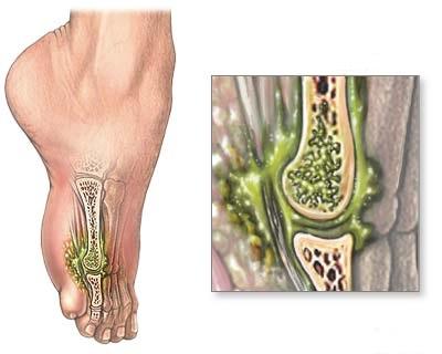 Сифилис костей и суставов