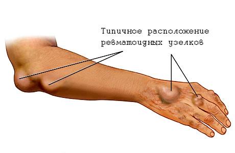 Лечение ревматизма суставов гомеопатия лечение сустава на локте