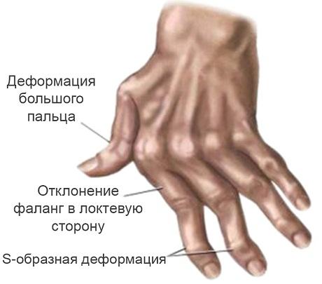 Ревматоидный артрит: причины, симптомы, лечение | EUROLAB ...