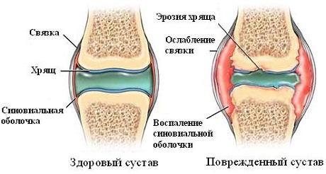 Патогенез ревматоидного артрита у детей thumbnail