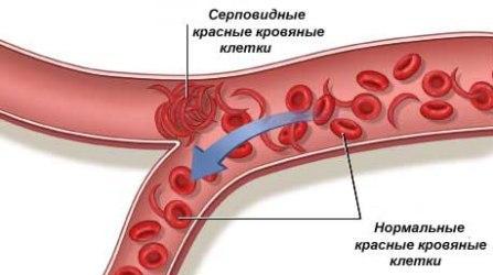 Анемии у детей