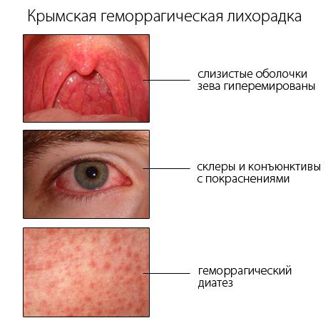 крымская геморрагическая лихорадка у детей