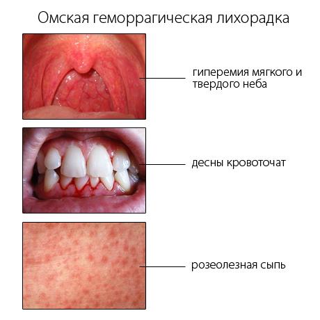 омская геморрагическая лихорадка у детей