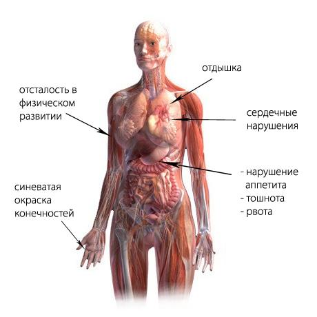 синдром вегетативной дистонии