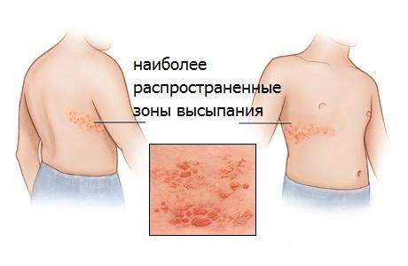 Опоясывающий лишай герпес у детей симптомы и лечение