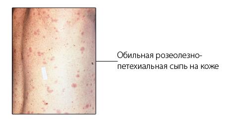 эпидемический сыпной тиф