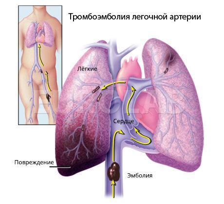 Тромбоэмболия легочной артерии: диагностика и лечение | EUROLAB ...