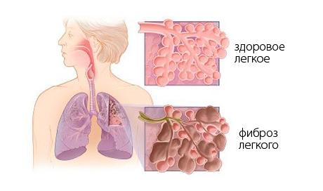 Болит горло сел голос кашель чем лечить