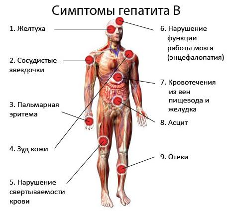 гепатит в