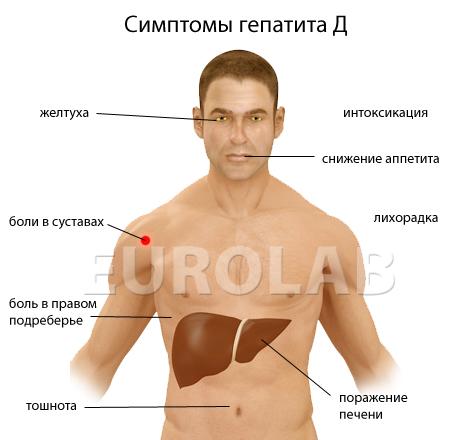 гепатит д