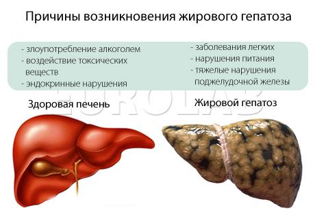 Рекомендации при циррозе печени алкогольной этиологии