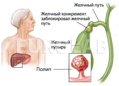 полипы желчного пузыря