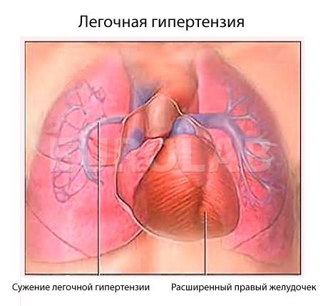 lechenie-legochnoy-gipertonii-narodnimi-sredstvami