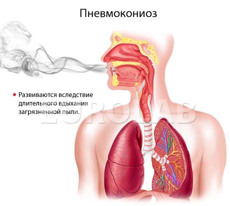пневмокониоз