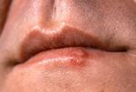 Лихорадка (герпетическая лихорадка). Болезненные, небольшого размера, наполненные жидкостью волдыри, обычно на носу или на губах. Причина лихорадки – симплексный вирус герпеса. Может длиться до 10 дней. Лихорадка заразна до тех, пор пока не лопнет. Возбудители лихорадки – жар, слишком много солнца, стресс, менструация. В качестве лечения применяются антивирусные препараты. Но если в волдыре вместо жидкости гной, температура выше 38, воспалены глаза, обязательно проконсультируйтесь с врачом.