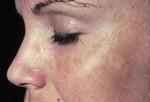 Меланоз («маска беременности»). Меланоз <em>прыщ</em> (или хлоазма) характеризуется желто-коричневыми или коричневыми пятнами на щеках, носу, лбу и подбородке. Хотя это кожное заболевание называется «маска беременности», но у мужчин оно может также встречаться. Меланоз может пройти после окончания беременности. Если не проходит, то для лечения используются крема и различные медпрепараты. При меланозе постоянно пользуйтесь солнцезащитными кремами, так как солнце ухудшает течение меланоза.
