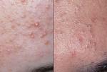 Прыщи. Прыщи встречаются не только у подростков: (слева) белые угри (милиум); (справа) гистомоноз. В середине прыща гной – пробка из жира, кожи и кератина (роговое вещество). Когда пробка открыта – это гистомоноз, когда закрыта – это милиум. Часто встречается на лице, шее, спине. Причин прыщей много, включая гормоны. Чтобы контролировать их, очищайте жирные участки кожи, не выдавливайте прыщи (это может вызывать инфекцию, кроме того, остаться шрам). Существует только три эффективных средства против прыщей: перекись бензоила, ретиноиды и антибиотики.