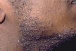 Люди с кучерявыми волосами часто страдают от бритвенных шишек. Бритвенные шишки. Бритвенные шишки – маленькие, воспаляющиеся шишки, которые развиваются после бритья. Острый край сбритого кучерявого волоска может закрутиться и врасти в кожу, тем самым создавая дискомфорт и появление шишек и даже рубцы. Чтобы снизить вероятность появления шишек, перед бритьем хорошо распарьте кожу, бриться лучше в направлении роста волос, не растягивайте кожу во время бритья. После бритья умывайтесь прохладной водой и используйте увлажнитель.