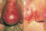 Красные угри. Часто начинается в виде сильного румянца, появляется краснота на носу, щеках, лбу, даже на глазах. Со временем покраснение усиливается. Если не лечить, могут появиться волдыри и прыщи с гноем, нос и сальные железы напухают. У мужчин красные угри проходят в более тяжелой форме, но у женщин они встречаются чаще. Лечение: медикаменты, а также хирургическое вмешательство – удаление кровеносных сосудов и коррекция формы носа.