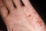 Экзема. Экзема не заразное кожное заболевание, при котором кожа воспаляется, краснеет, шелушится и зудит. Стресс, раздражители (например, мыло), аллергены, климат могут вызвать внезапную вспышку экземы, но они не являются первопричинами экземы. А сами причины болезни не известны. У взрослых экзема появляется чаще всего на локтях, руках и в местах «сгиба», например, на внутренней стороне локтя. Лечение: медпрепараты, уколы, антибиотики, антигистамин или светолечение.